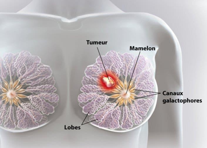 des scientifiques ont d truit des cellules du cancer du sein en 11 jours sans chimioth rapie. Black Bedroom Furniture Sets. Home Design Ideas