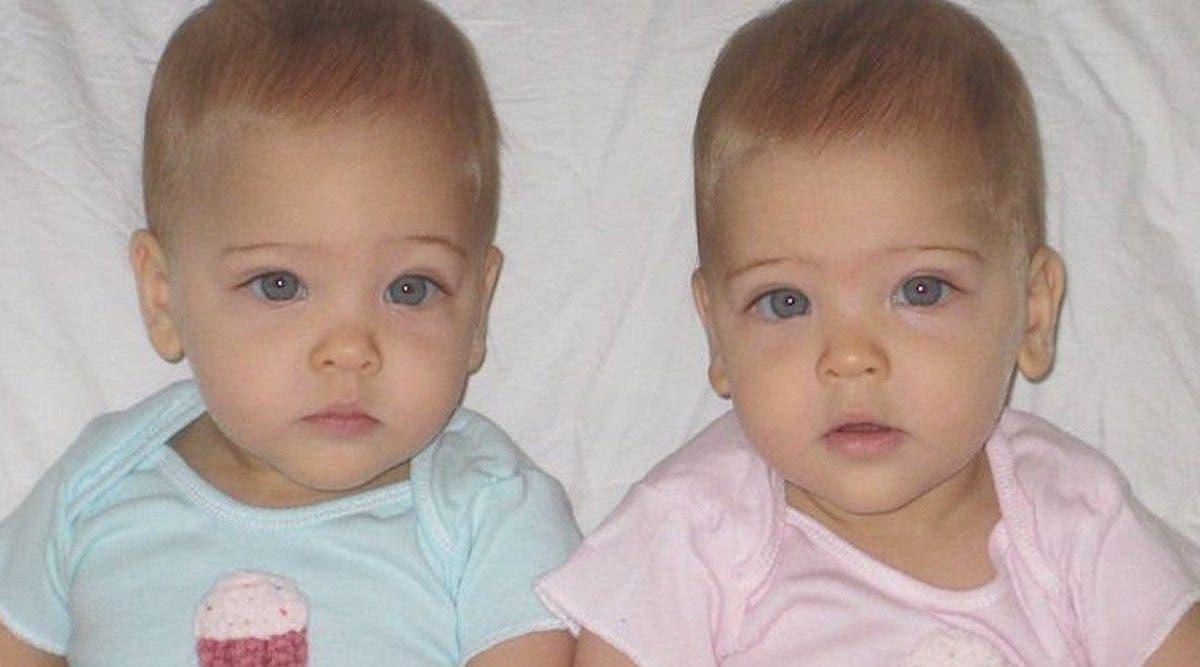 Des sœurs jumelles nées en 2010 ont grandi pour devenir les «plus belles jumelles au monde»