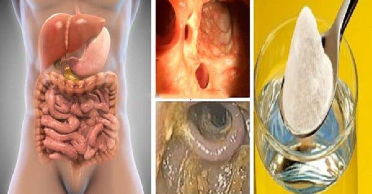 Detox de 3 jours du colon 1