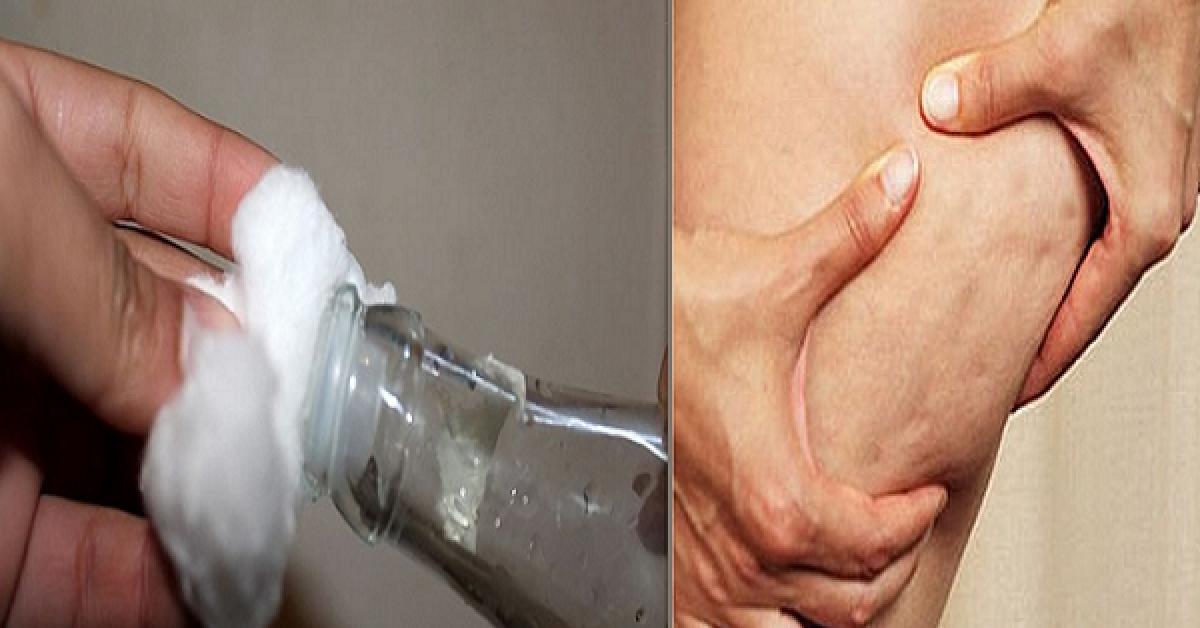 Deux astuces pour eliminer la cellulite facilement et preparer votre corps pour lete 1