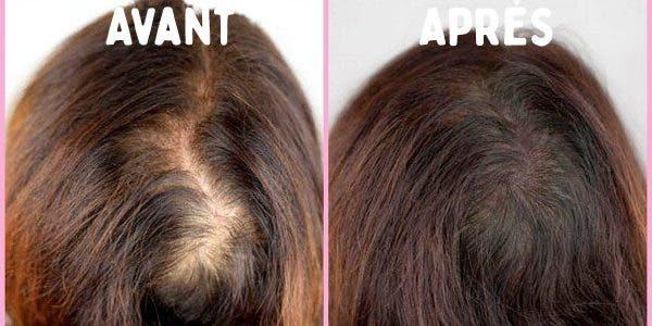 Dites adieu à la chute de cheveux et faites les repousser en une semaine avec ce remède à l'huile d'amande douce