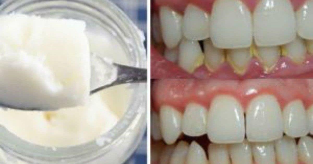 Dites adieu à la mauvaise haleine, à la plaque et aux bactéries dans votre bouche avec un seul ingrédient