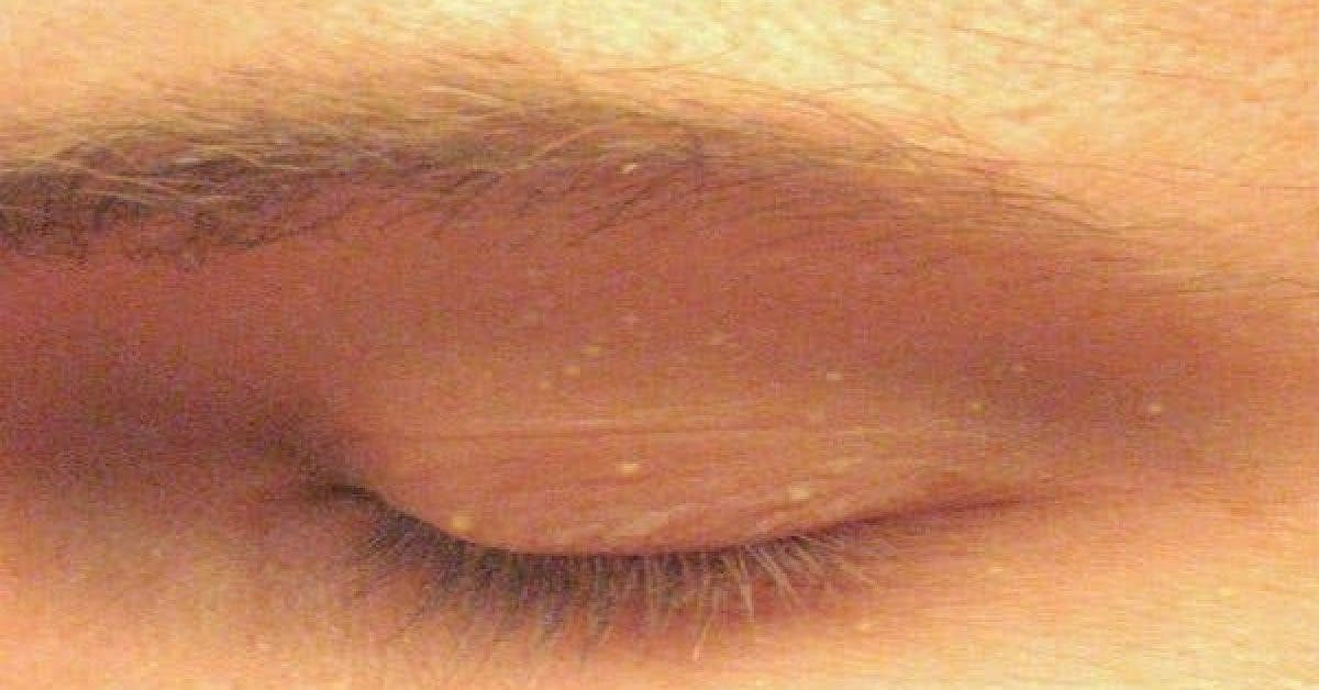 Do You Ever Get Little White Spots On Your Face Like This Heres What It Could Mean… 1 1