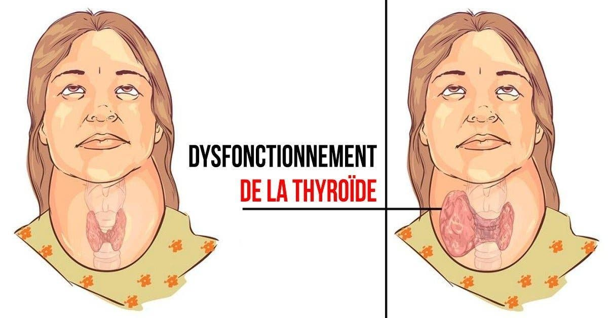 Dysfonctionnement de la thyroide 1 1