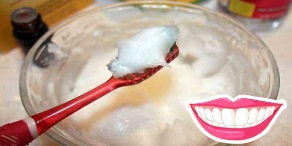 Eliminer le tartre et blanchir les dents en 4 étapes