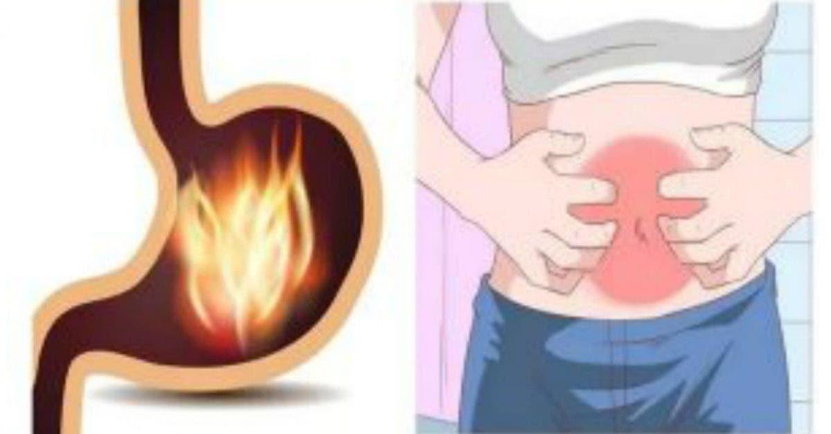 Eliminer les gastrites et les colites avec ce remède puissant !
