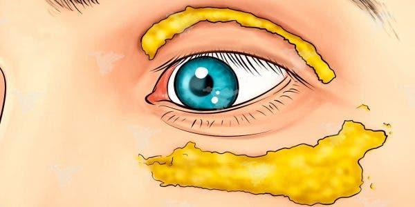 Elle a commencé à appliquer du curcuma autour de ses yeux. 10 minutes plus tard, le résultat est génial !