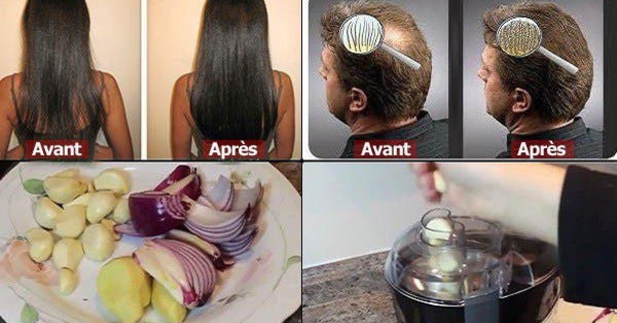 Elle avait des cheveux fins mais elle a utilise cet ingredient et sa chevelure est devenue plus epaisse 1
