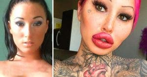 Elle dépense 88 000 euros en chirurgie et révèle les photos de sa transformation