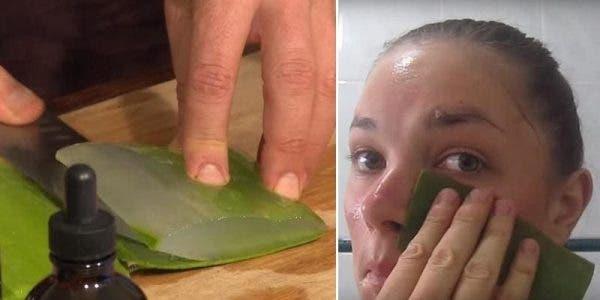 Elle frotte de l'aloe vera sur son visage pendant 7 jours et les résultats sont bluffants