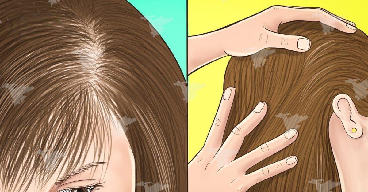 Empêcher la perte précoce des cheveux avec cette astuce puissante