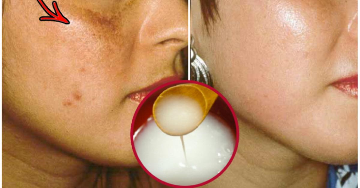 Enlevez les taches de votre visage naturellement et rapidement 1