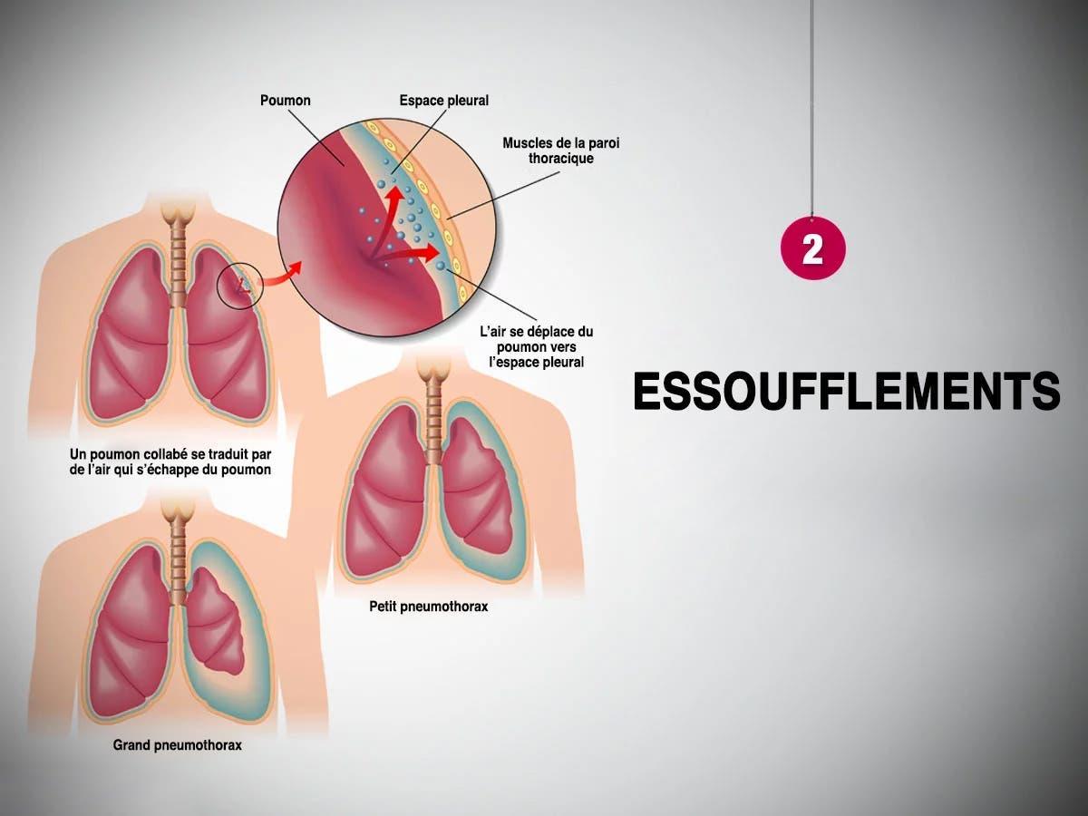 Essoufflements