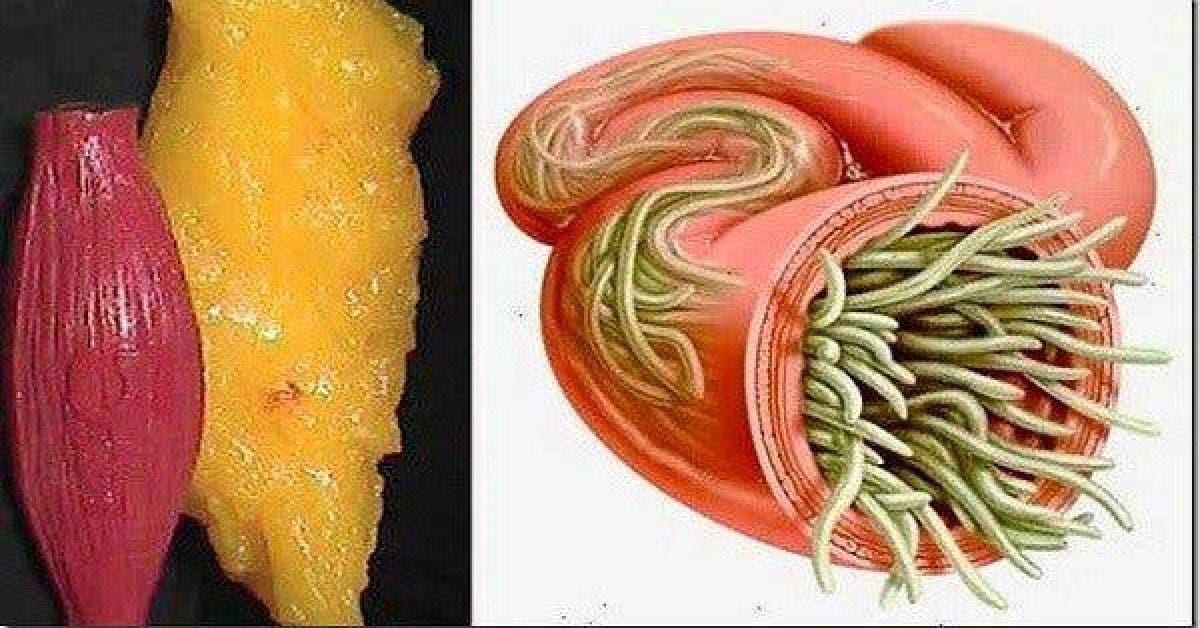 Évacuez toute la graisse et les parasites présents dans votre corps grâce à cette astuce puissante