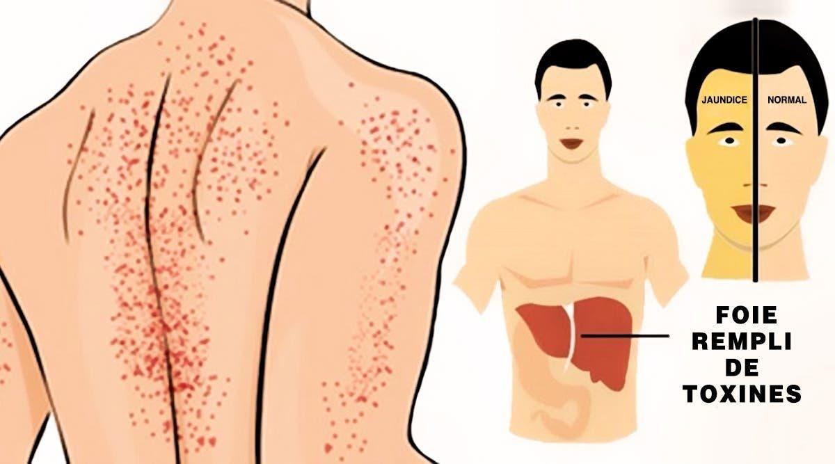 signes qui montrent que votre foie est endommagé