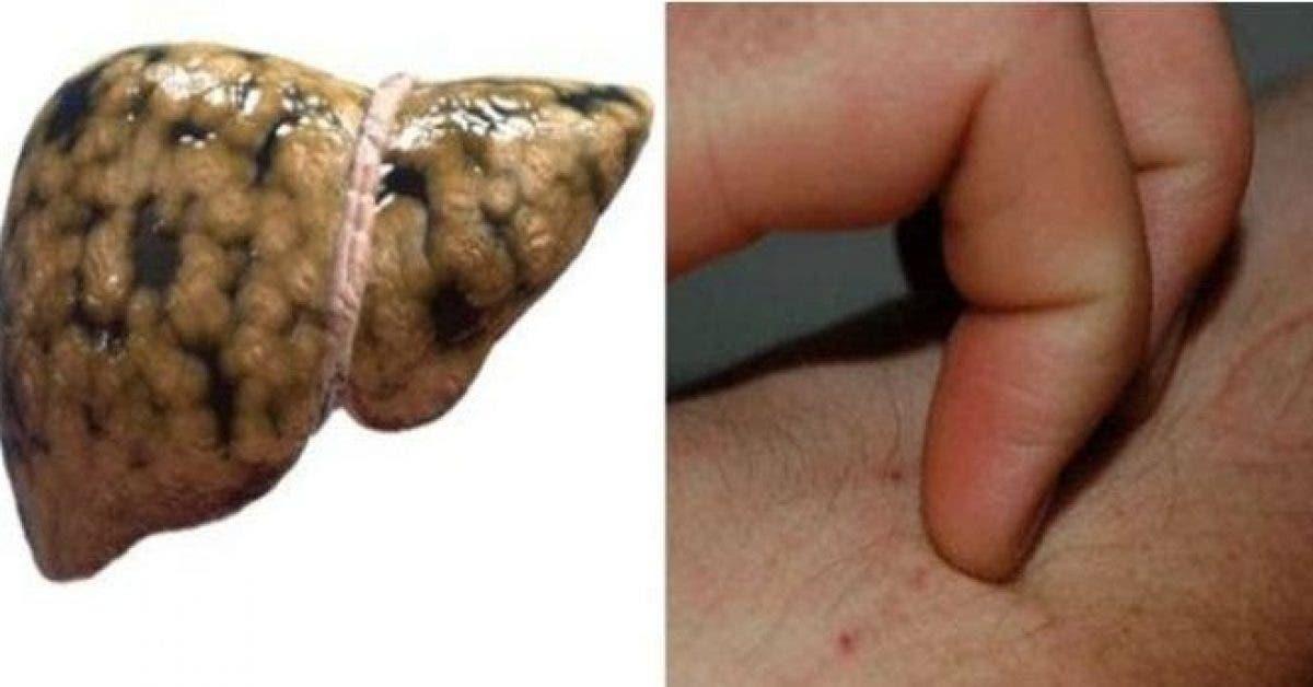 Voici les signes qui indiquent que vous avez une cirrhose et comment y remédier