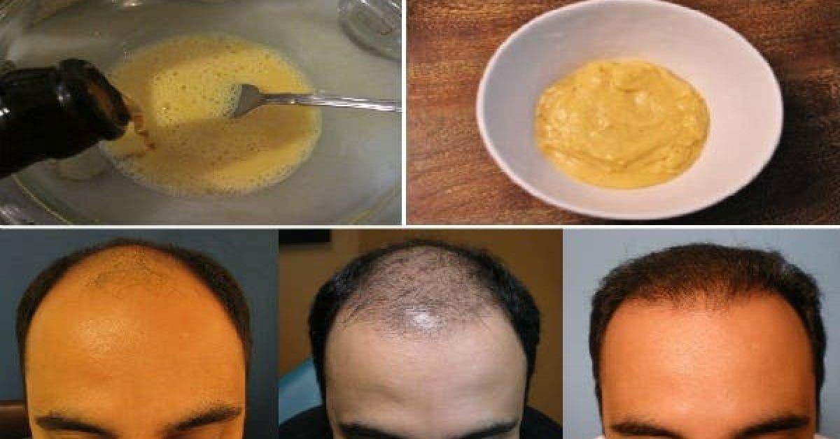 Il a melange ses 2 ingredients et les a applique sur ses cheveux 1