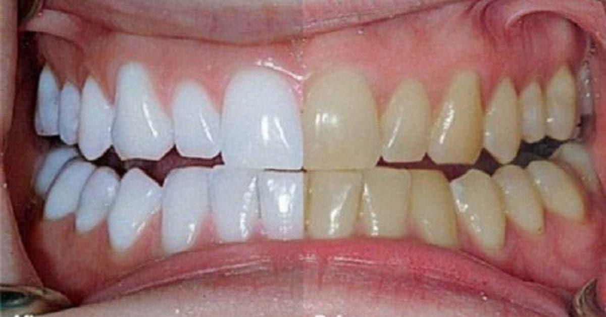Il melange 2 ingredients et les met sur ses dents. Resultats incroyables