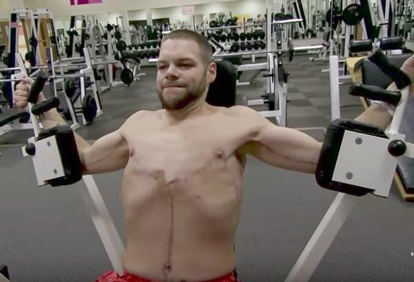 Il pesait 306 kilos et ne pouvait plus quitter sa maison