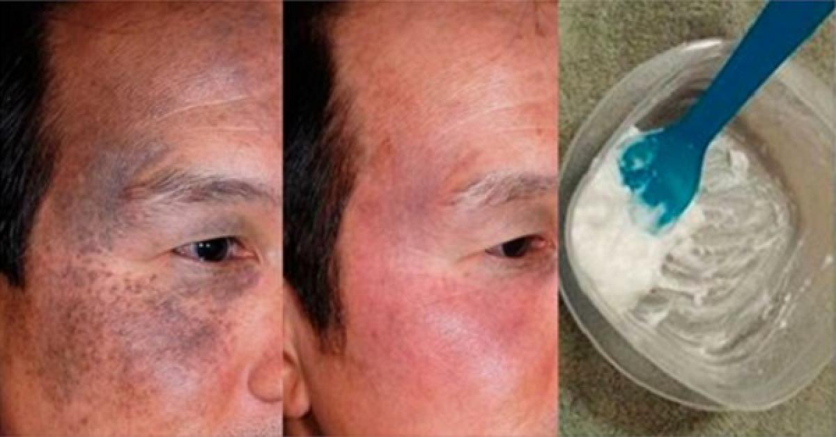 Il s'est lavé le visage avec ceci, sa femme n'arrivait pas à le reconnaitre tant il paraissait plus jeune qu'elle