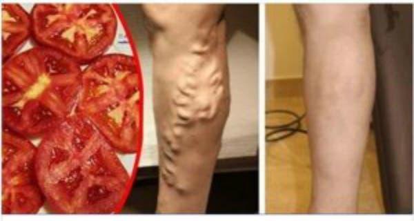 J'avais beaucoup de varices sur mes jambes et le médecin m'a recommandé une astuce pour m'en débarrasser