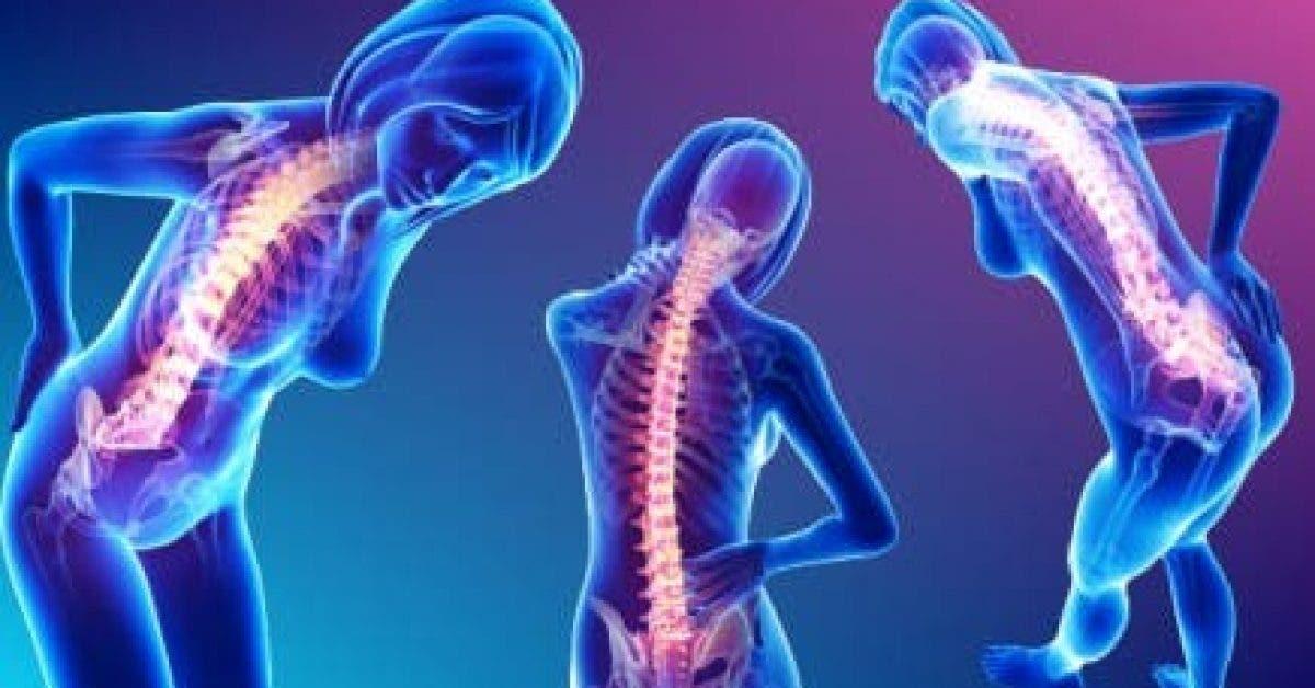 Jetez vos medicaments Voici comment eliminer les douleurs de dos et cou de facon permanente 1