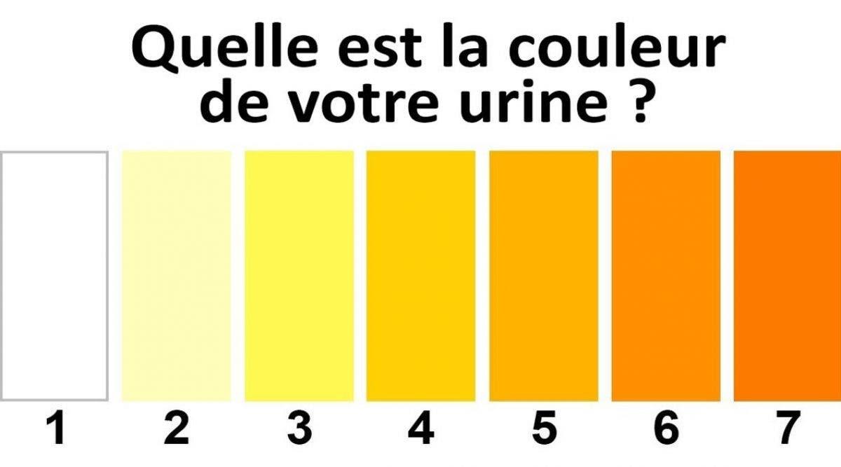Quelle est la couleur de votre urine ?