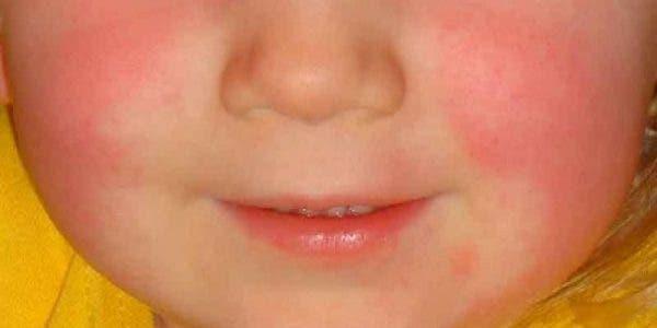 La fièvre scarlatine est de retour et tous les parents doivent faire attention à ces signes annonciateurs