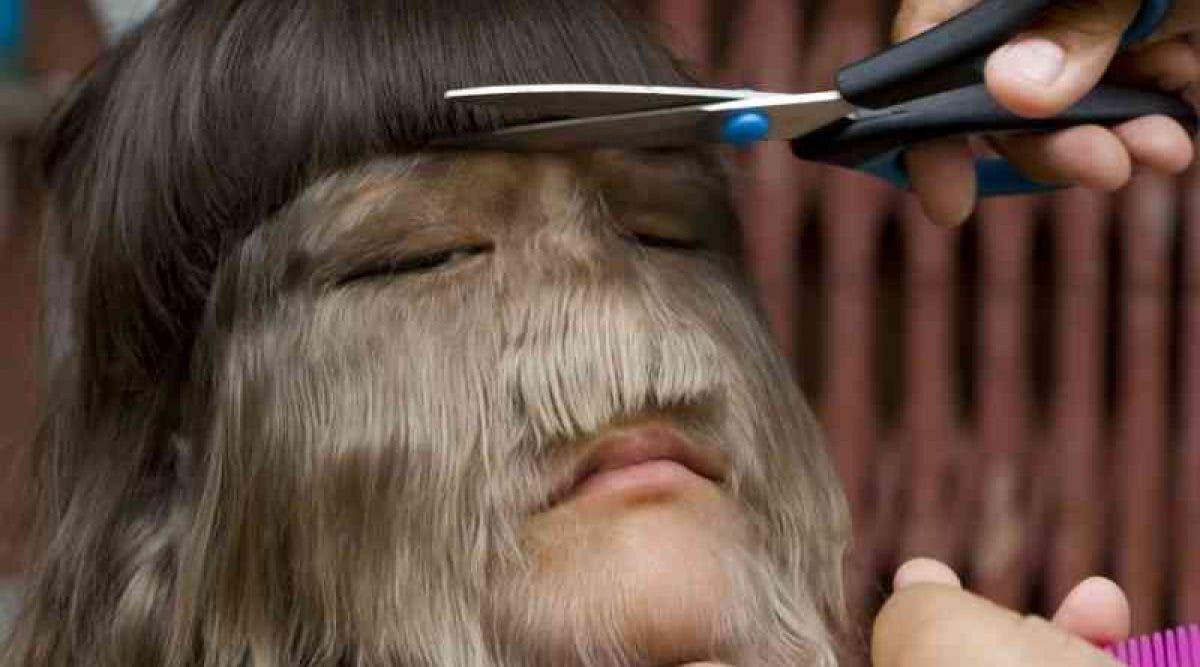 La fille la plus poilue du monde décide de se rase le visage et trouve l'amour de sa vie