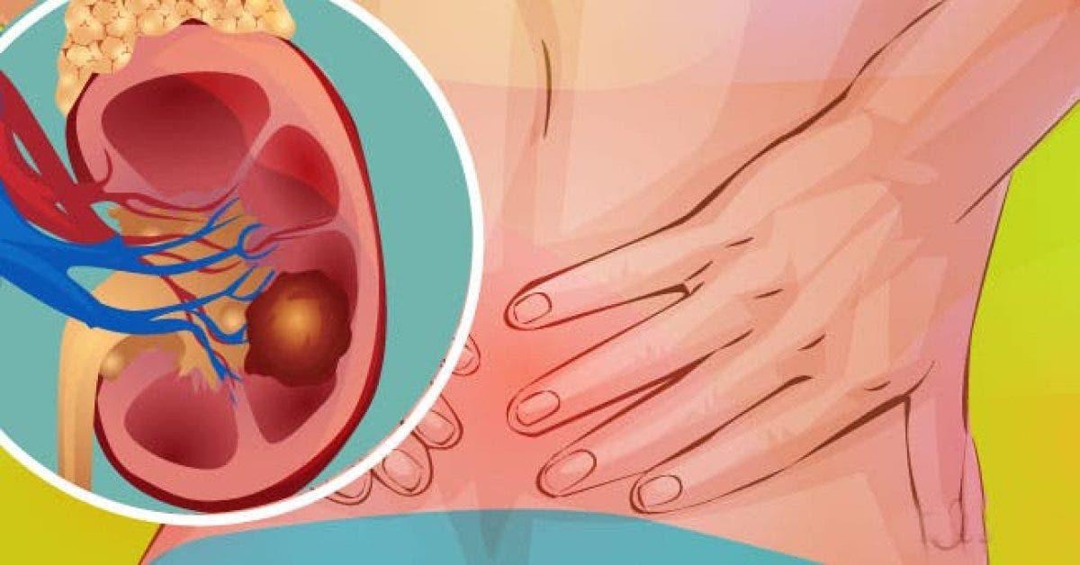 La maladie des reins provoque de la fatigue et de l'anémie : 4 symptômes à identifier