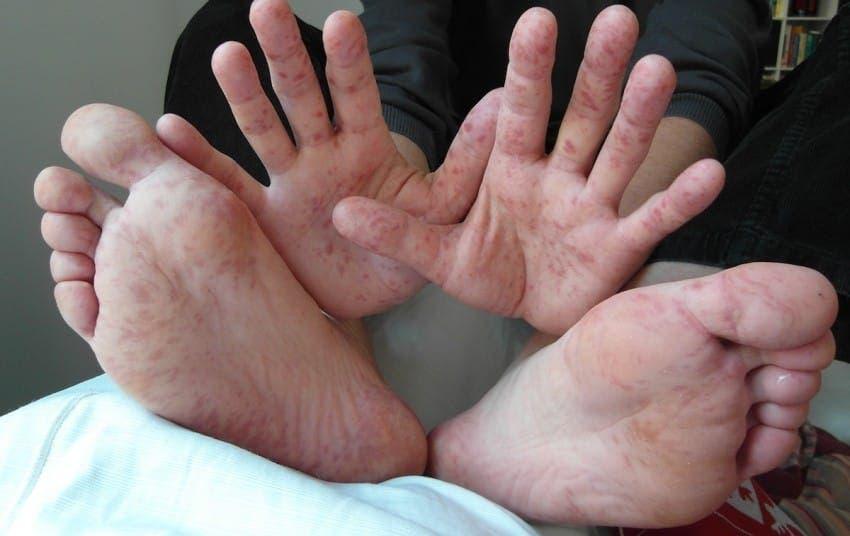 La maladie pied main bouche