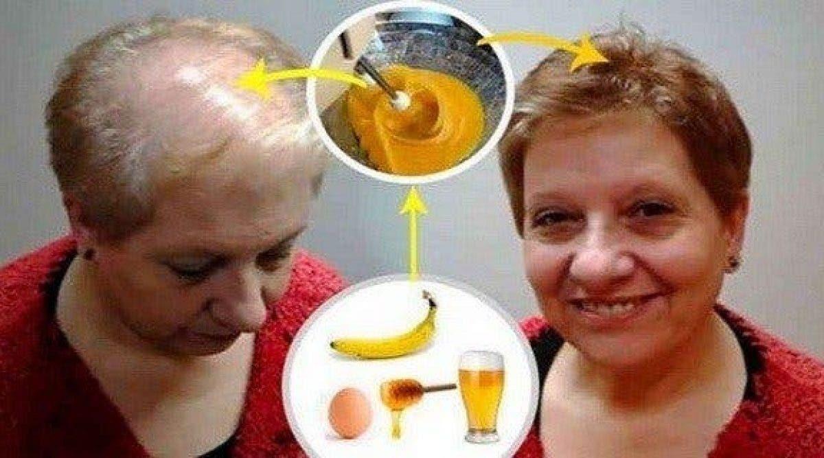 La meilleure recette contre la chute de cheveux a laissé les dermatologues bouche-bée
