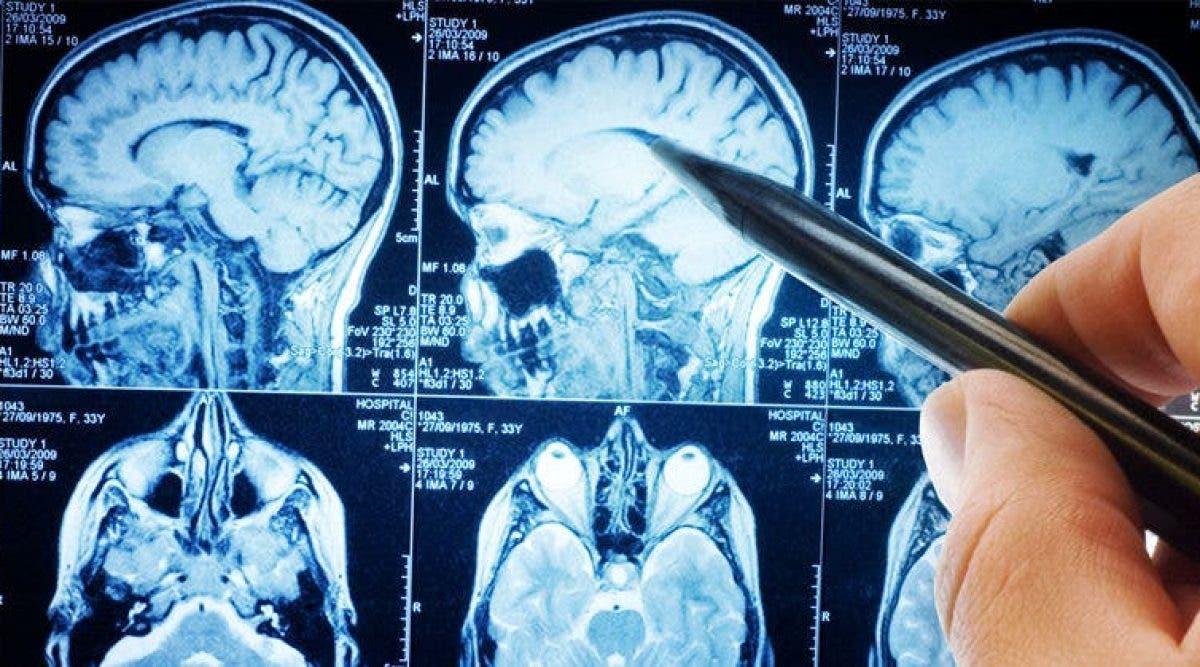 La neuroscience révèle enfin ce que le jeûne fait à votre cerveau