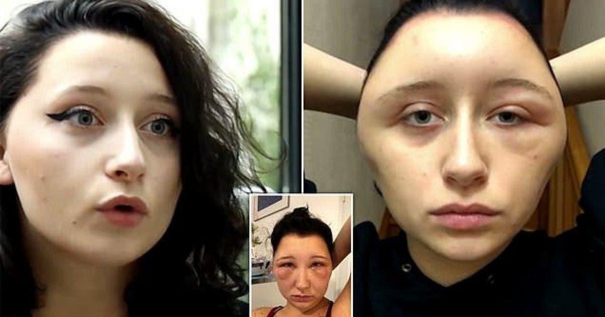 La tête d'une femme double de volume après une réaction allergique à la teinture pour cheveux
