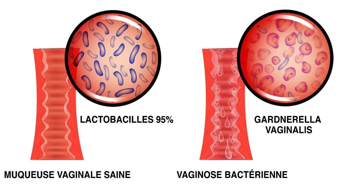 La viginose bactérienne cause des brûlures, des démangeaisons et des pertes malodorantes : voici comment vous en débarasser