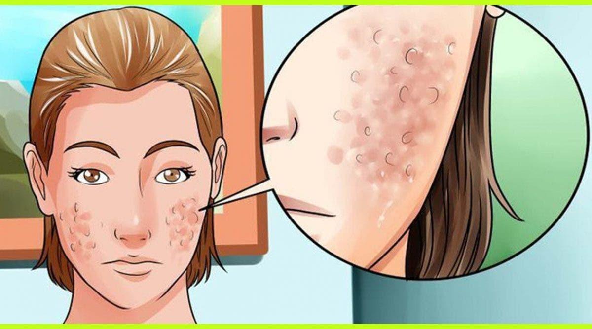 L'astuce de ma grand-mère pour se débarrasser des traces d'acné et des pustules