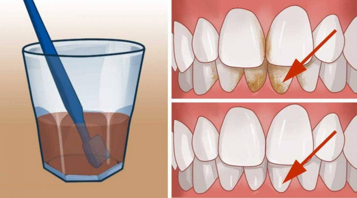 L'astuce géniale pour se débarrasser de la plaque et blanchir vos dents à la maison !