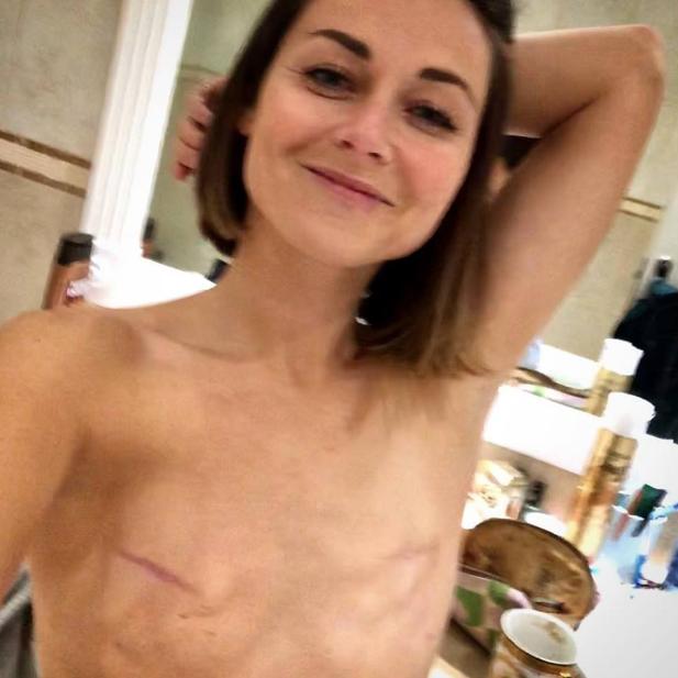 Une survivante du cancer du sein poste une photo seins nus