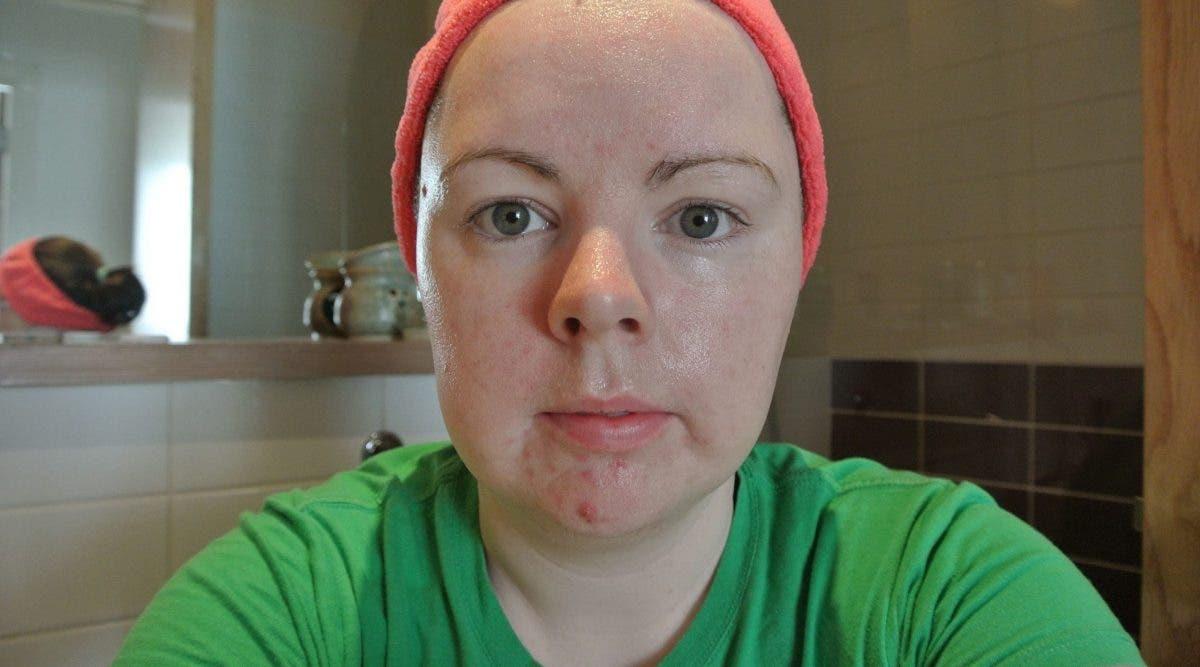 Lavez votre visage à l'huile de coco et au bicarbonate de soude 1 fois par semaine. Voici ce qui se passe en 1 mois