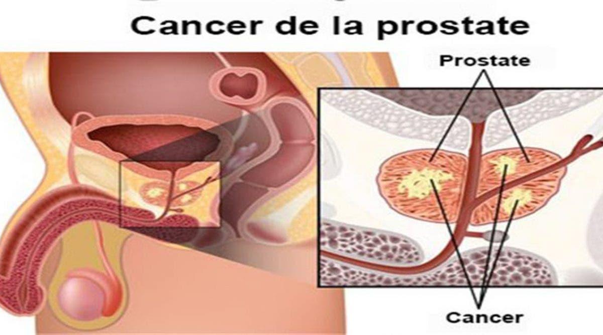 cancer de prostate
