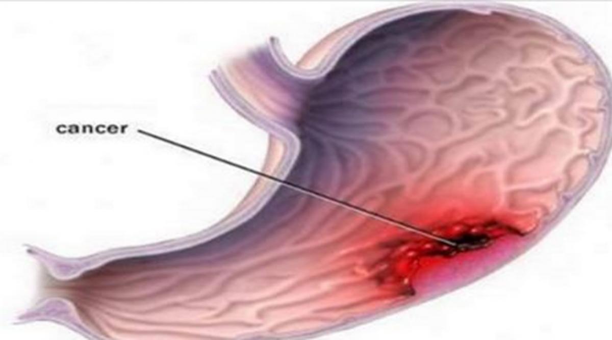 Le cancer de l'estomac est un tueur silencieux : les signes à détecter au déclenchement de la maladie