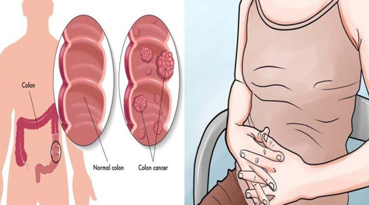 Le cancer du colon est un tueur silencieux : 5 signe à repérer
