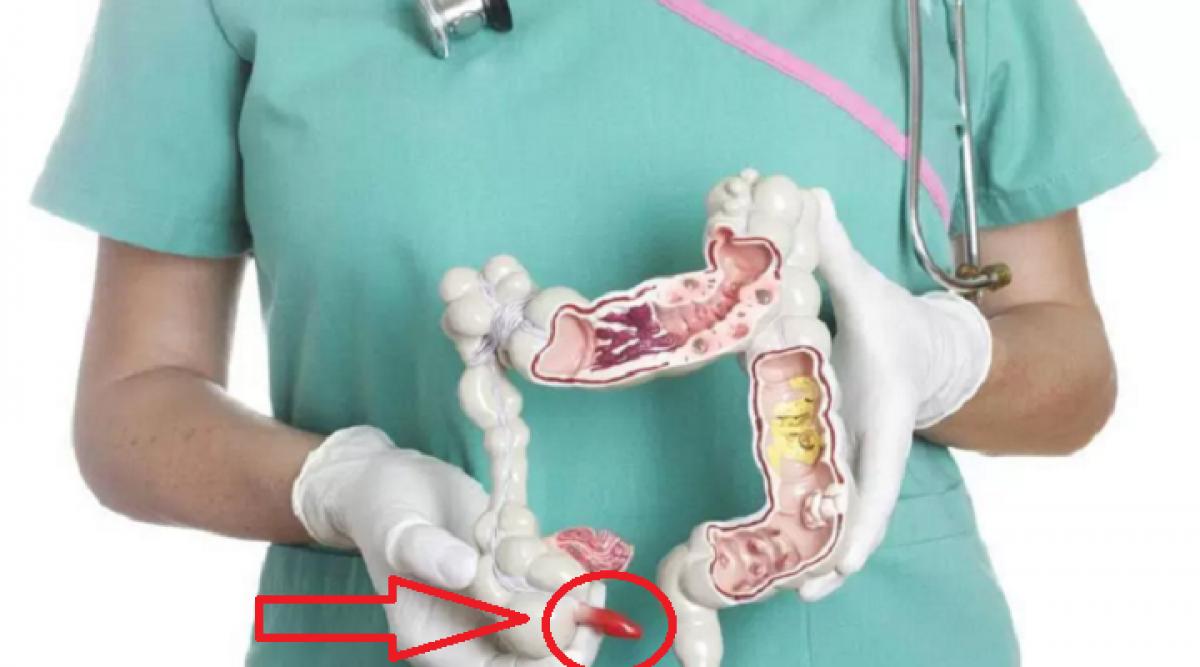 Le cancer du colon est un tueur silencieux : 5 symptômes à identifier