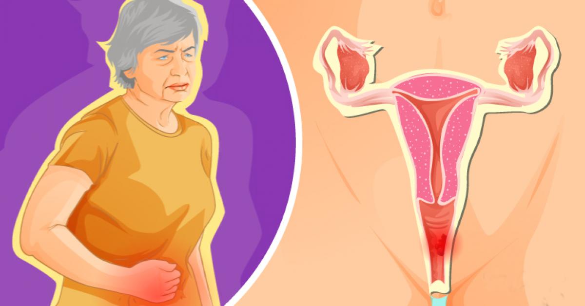 Le cancer du vagin