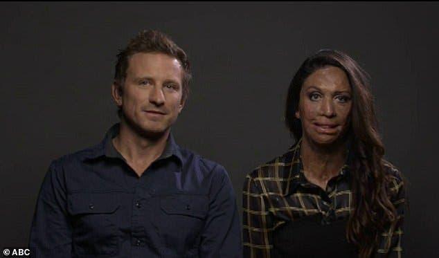 Le feu lui a brûlé le visage mais son mari lui a prouvé que son amour