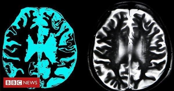 Le premier médicament qui ralentit la maladie d'Alzheimer pourrait être bientôt disponible pour des millions de personnes
