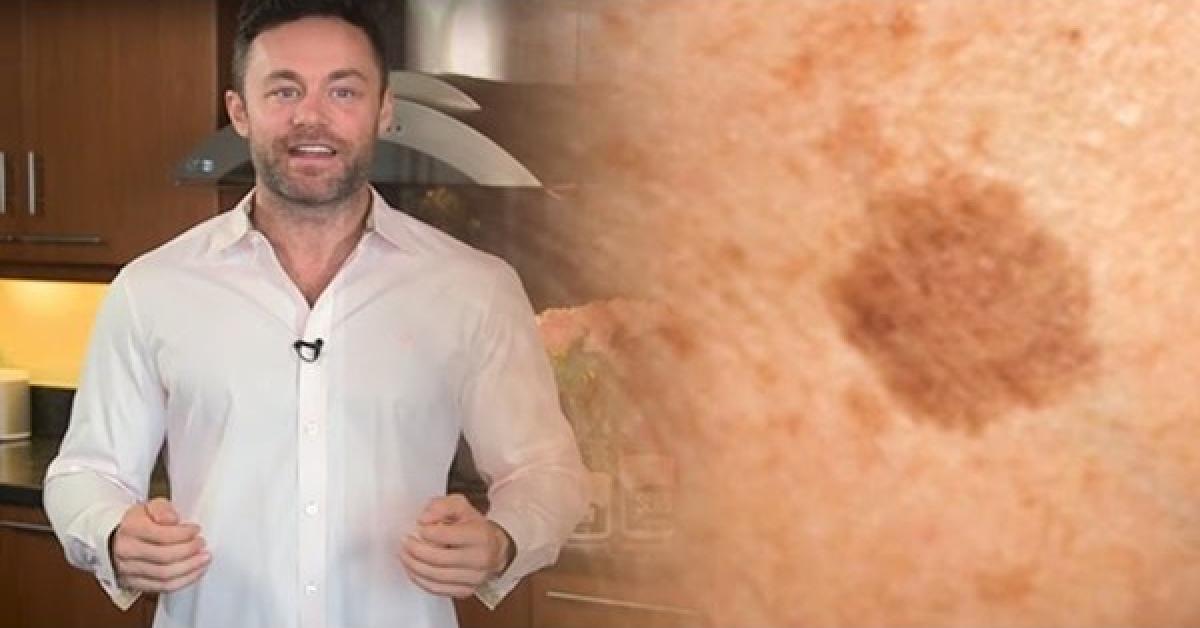 Le remede naturel et puissant dun dermatologue pour enlever les taches brunes 1