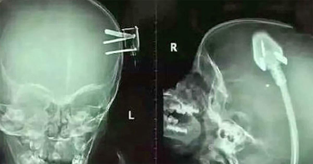 Le scanner du cerveau d'un garçon choquent les médecins du monde entier