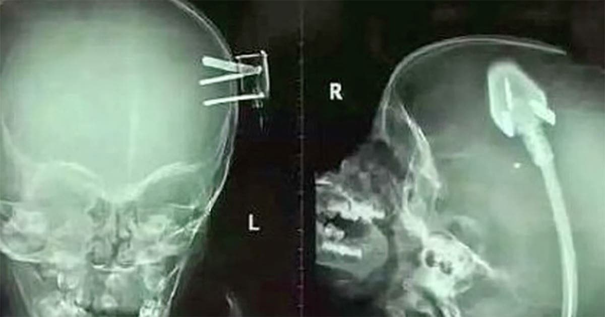 The scan of a boy's brain shock doctors around the world