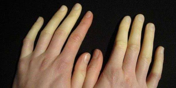 Pieds et mains froids